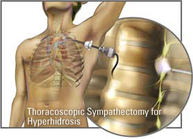 Hyperhidrosis Surgery ETS