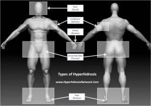 Types of Hyperhidrosis