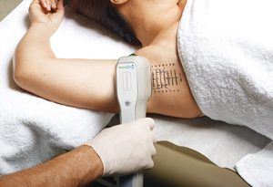 miradry works by destroying sweat glands in underarm area